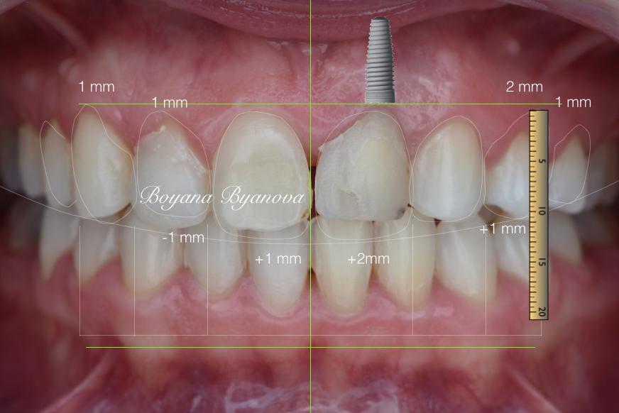 implanti-zubi-cena