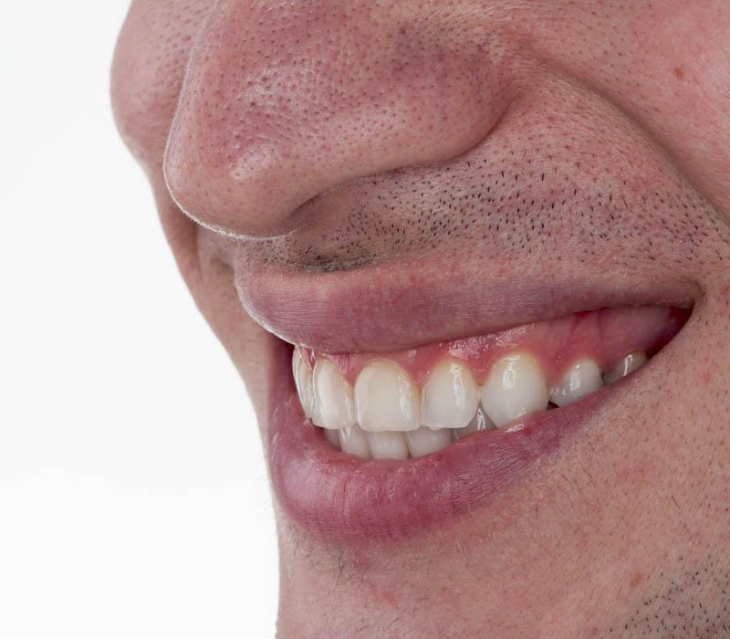 faseti-estetichna-stomatologiya