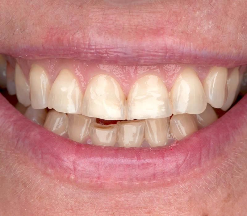 faseti-dentalna-klinika