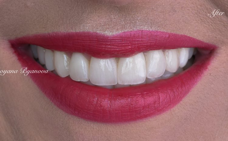 beli-zubi-cena