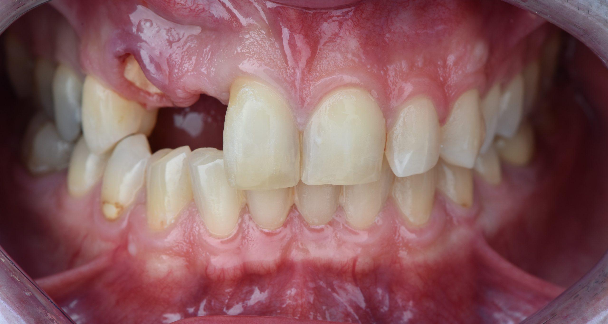 implanti-za-zubi