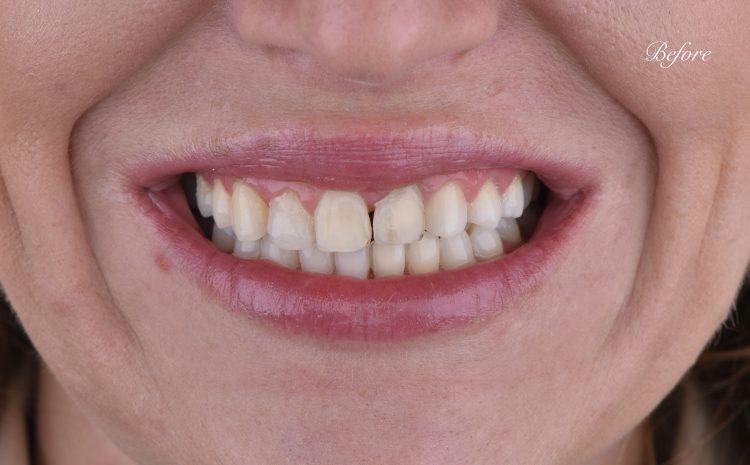 dentalen-center-bulgaria