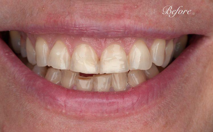 жълти-зъби