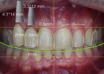 zabni-implanti