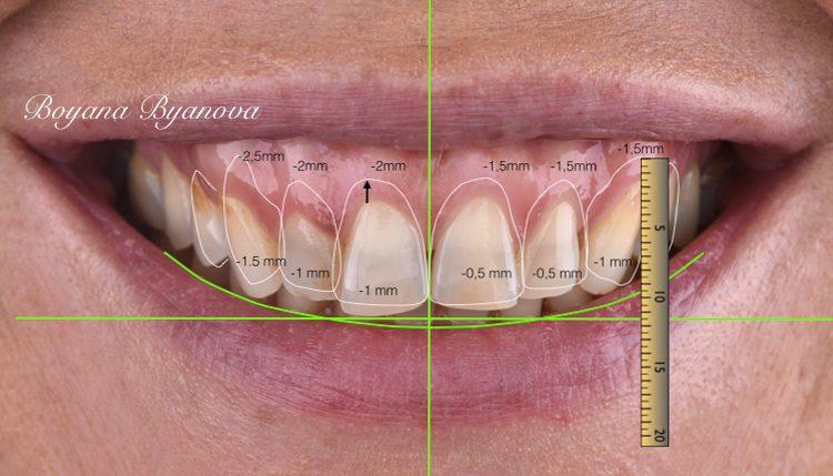 Smile-design-sofia
