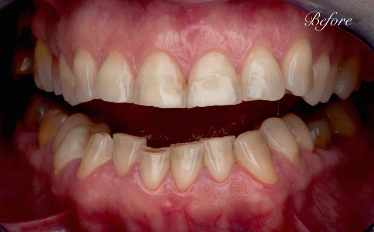 problemni-zubi
