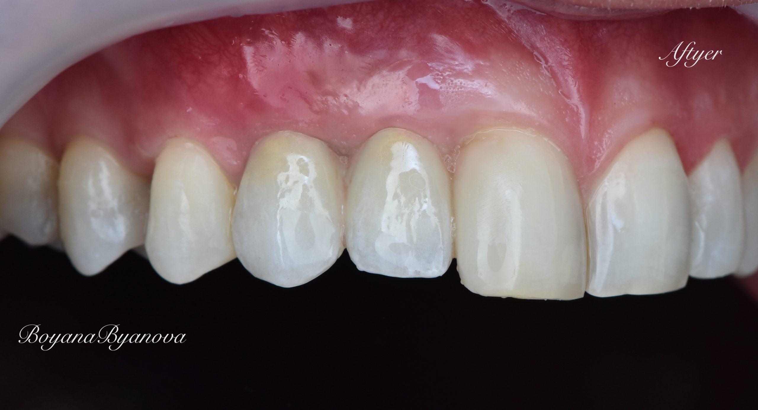 dentalni-uslugi-zdravi-zubi