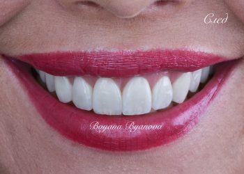 dentalni-uslugi-izbelvane