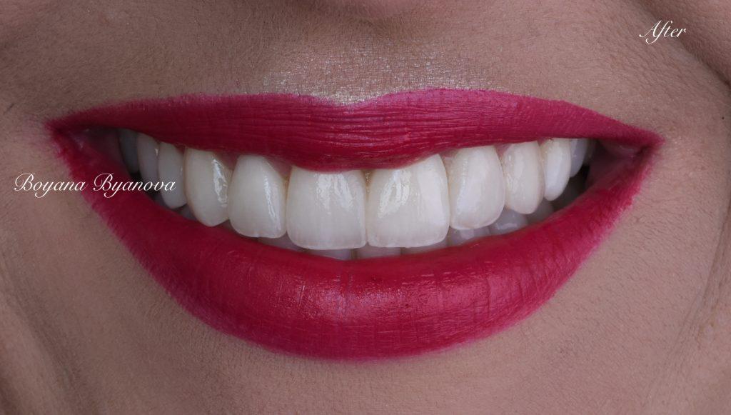 Нова красива усмивка