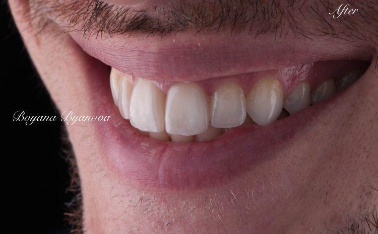 dentalen-center-uslugi