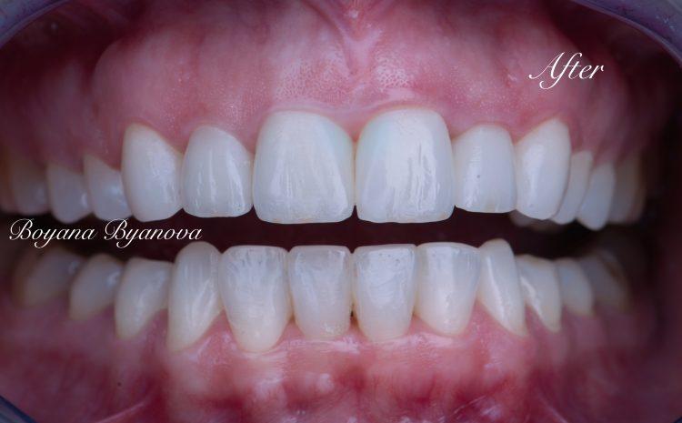 hubava-usmivka-estetichna-stomatologiya