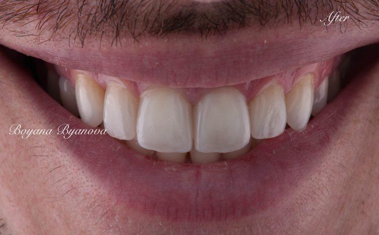 beli-zubi