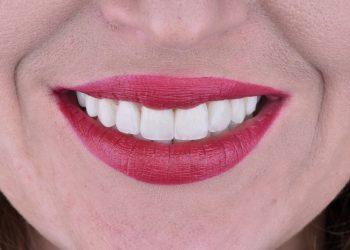 Virtue-Dental-Center-estetichna-dentalna-klinika