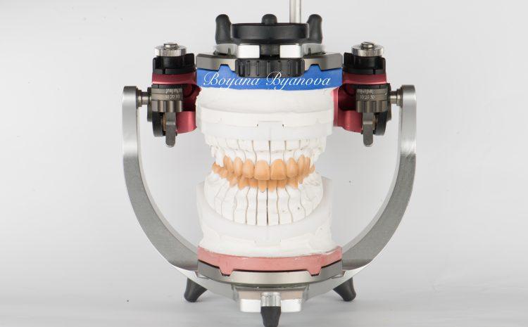 Virtue-Dental-estetichen-dentalen-center