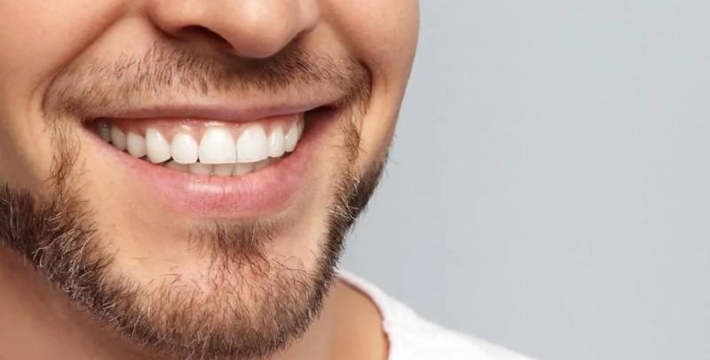Избелване на зъби в София