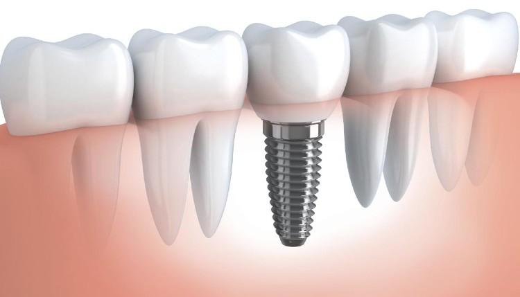 лечение със зъбни импланти