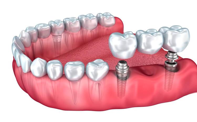какво е зъбен имплант