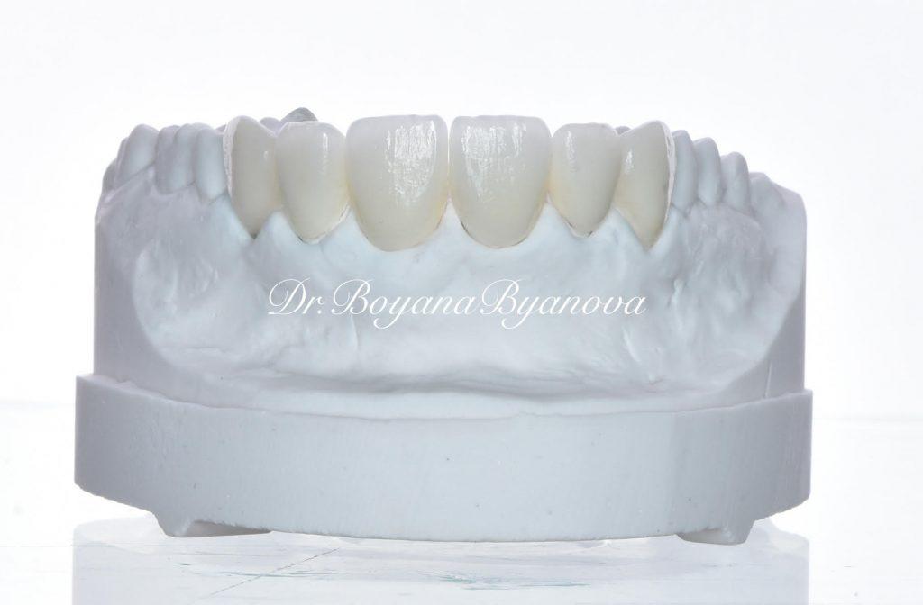 Коронки върху зъби